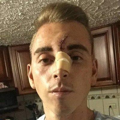 Reid Strain tras recibir puntos de sutura. Foto extraida de FACEBOOK.